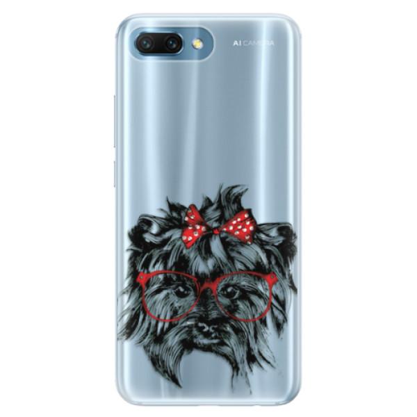 Silikonové pouzdro iSaprio - Dog 03 - Huawei Honor 10